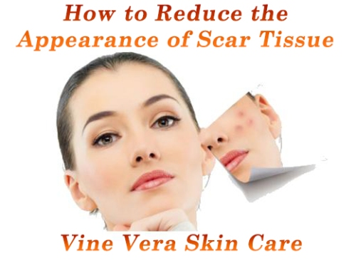 Scar Tissue Treatment - Vine Vera Skin Care