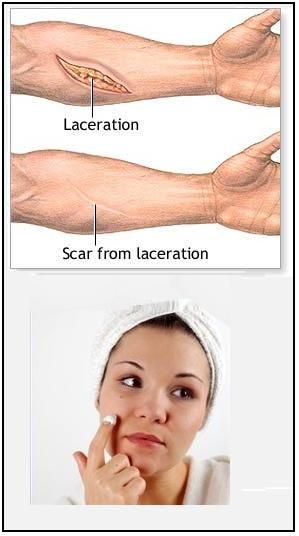 How to Reduce the Appearance of Scar Tissue