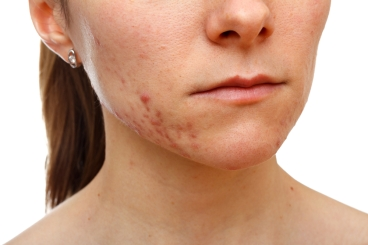 Ravages of Acne pron skin