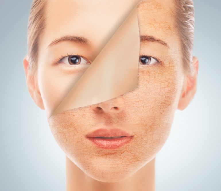 Portrait of a young woman with very dry skin