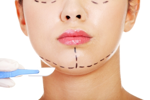 Face with markings showing plans for plastic surgery