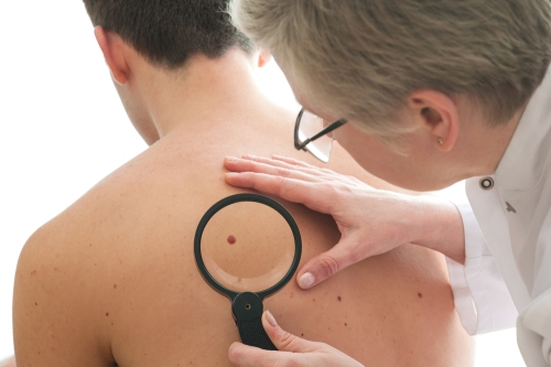 Doctor looking at a mole on patients back